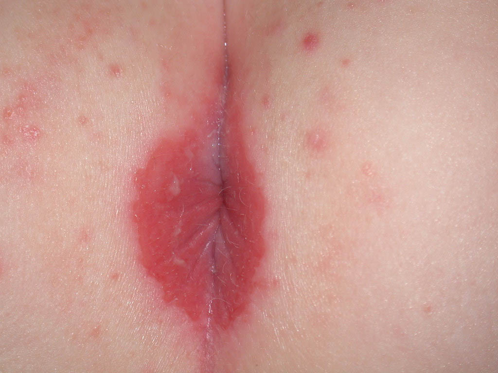 for rash treatment peri skin anal
