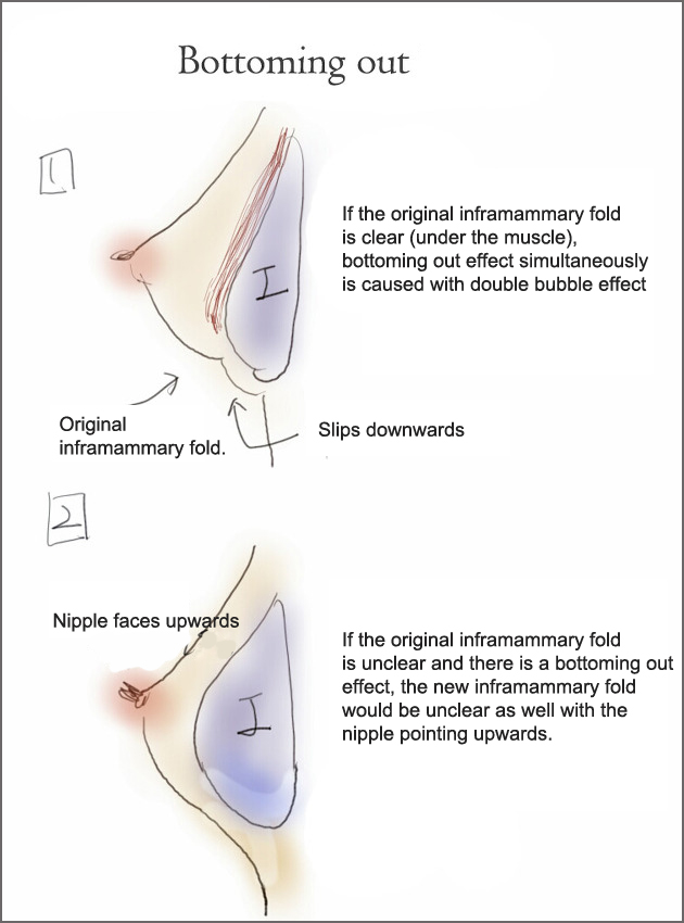 bottoming out breast