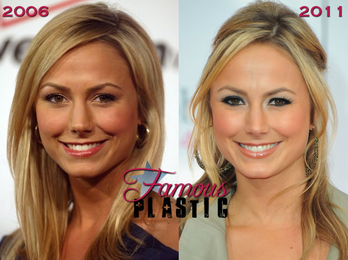 keibler breasts stacy