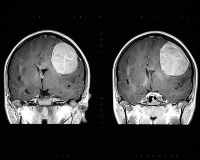 brain metastases and and cancer breast and