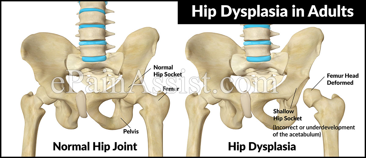 hip exercises dysplasia adults in