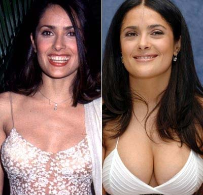 with breast actresses implants