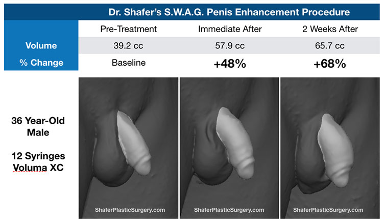 the penis on plastic surgery